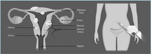 Diagram showing abdominal type of myomectomy