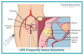 Frequently asked questions on UFE.
