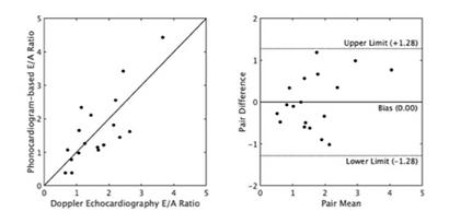 Mitral E/A ratio computation using Sensydia technology