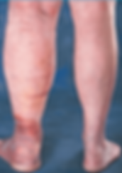 Leg-swelling-from-severe-venous-insufficiency