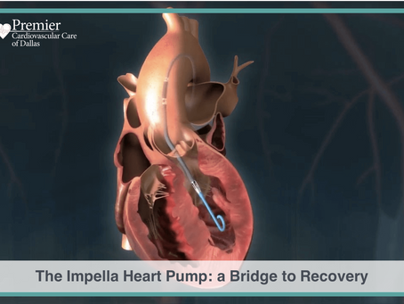 The Impella Heart Pump: a Bridge to Recovery from Cardiogenic Shock