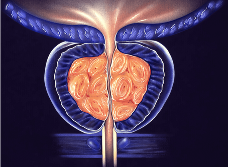 The Most Common Complications of Prostatic Artery Embolization