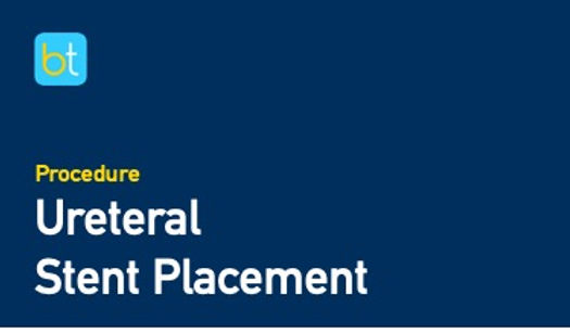 Ureteral Stent Placement