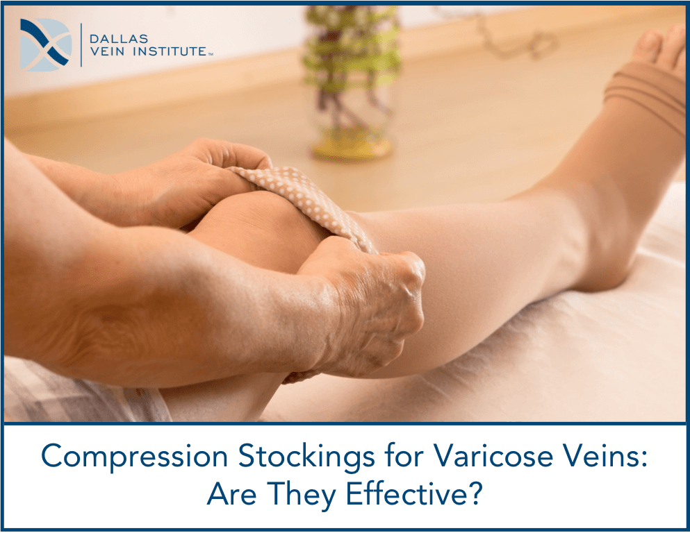 5be7b1e478 Compression stockings for varicose veins: are they effective?