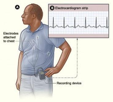 ambulatory-rhythm-monitoring