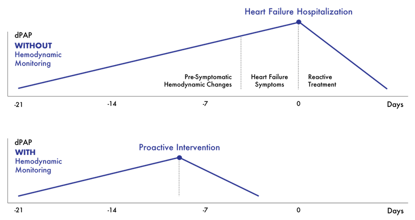 Reactive vs. Proactive Intervention with Hemodynamics in Heart Failure