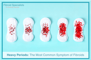 Heavy periods and fibroids