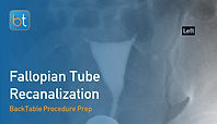 Fallopian Tube Recanalization Procedure Prep