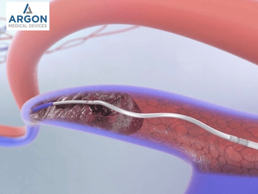 Pros & Cons of the Argon Cleaner Thrombectomy System for Dialysis Access Declots
