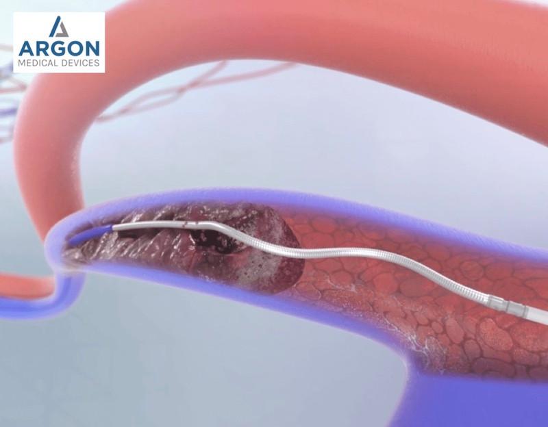 argon-cleaner-thrombectomy-declot-device