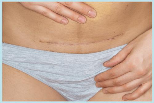 Abdominal hysterectomy scar from incision on bikini line