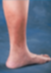 Skin-discoloration-in-leg-from-severe-venous-insufficiency