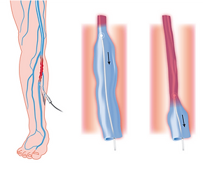 Diagram of thermal vein ablation