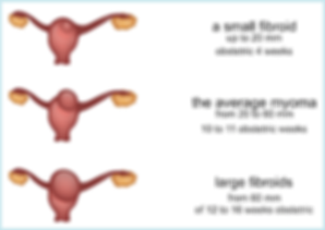 Diagram of growing fibroid size causing uterus weight gain