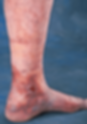 Venous-ulcer-open-wound-on-ankle-from-severe-venous-insufficiency