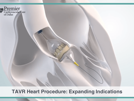 TAVR Heart Procedure: Expanding Indications for Less Invasive Valve Replacement