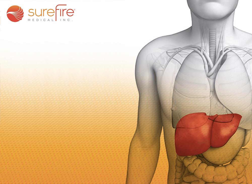 surefire-radial-access-liver