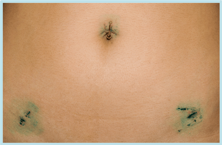 Laparoscopic hysterectomy scars from incisions close up