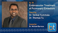 Endovascular Treatment of PE Podcast Guest Dr. Venkat Tummala