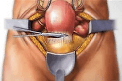 Abdominal hysterectomy surgery diagram