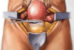 Abdominal hysterectomy surgery diagram