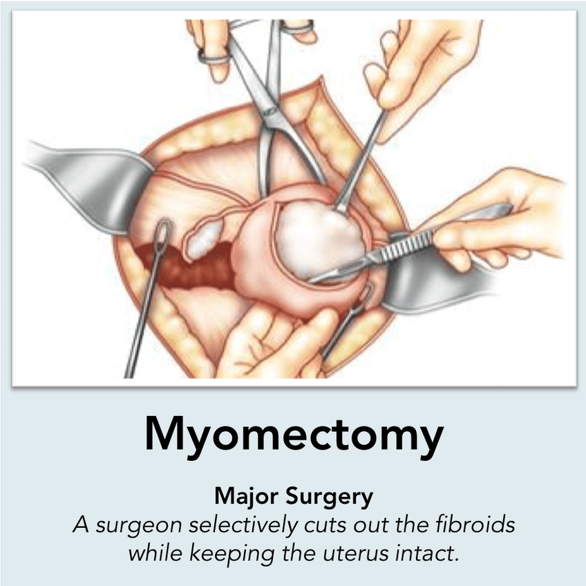 Myomectomy Surgery: A surgeon selectively cuts out the fibroids while keeping the uterus intact