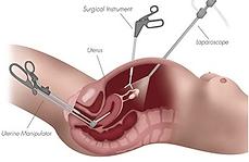 Diagram of laparoscopic hysterectomy technique
