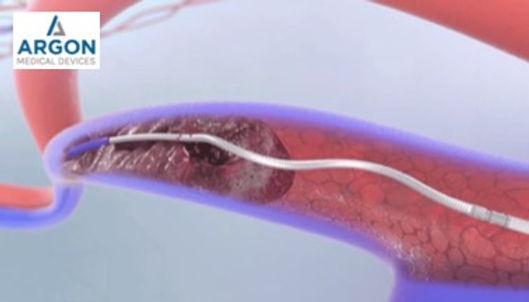 Argon Cleaner thrombectomy declot device