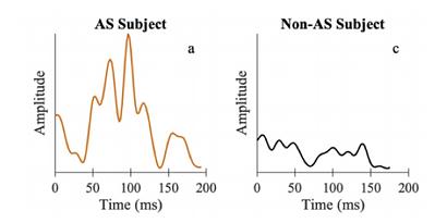 Aortic stenosis diagnosis using Sensydia technology
