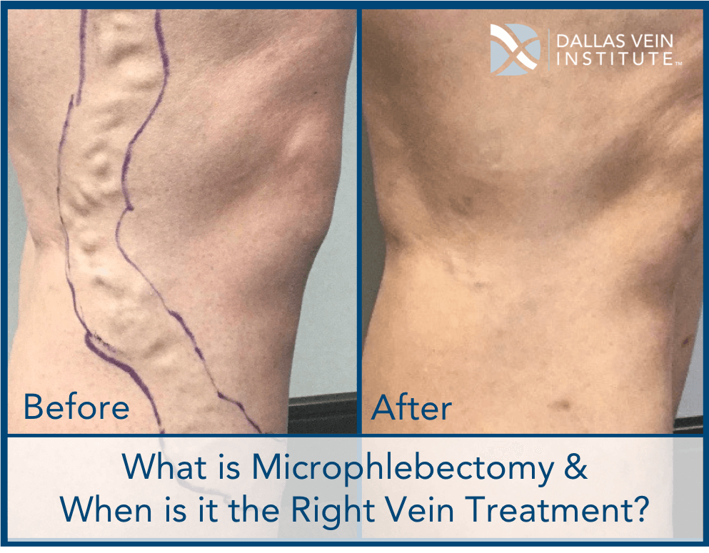 683451848b What is Microphlebectomy & When is it a Good Treatment Option for Varicose  Veins?