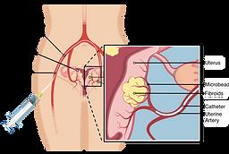 Uterine fibroid embolization UFE uterine fibroids treatment diagram