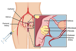 Uterine fibroid embolization UFE uterine fibroids treatment diagram