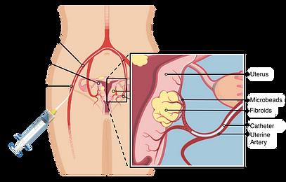 Uterine fibrod embolization (UFE) procedure graphic.