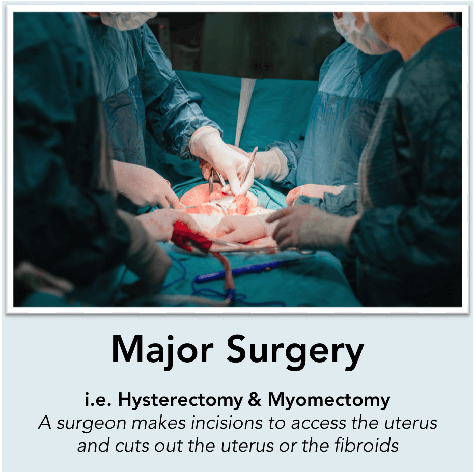 Hysterectomy & myomectomy surgery: A surgeon cuts out the uterus or the fibroids