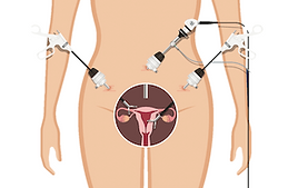 Fibroid removal through multiple small incisions with laparoscopic myomectomy