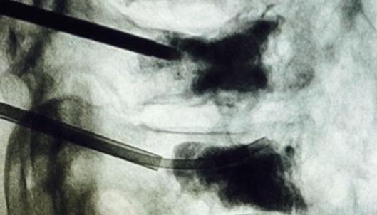 Vertebral augmentation x-ray fluoroscopy