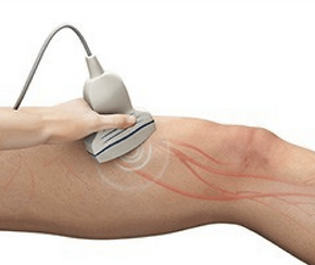 Arterial ultrasound transducer on the leg
