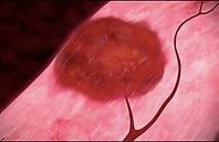 Fibroid shrinks afte UFE procedure