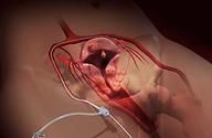 UFE catheter insertion to perform uterine fibroid embolization
