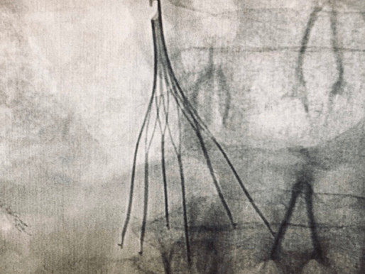 Tips and Techniques For Over-The-Wire IVC Filter Placement