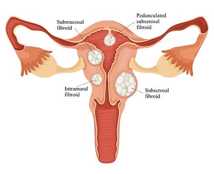 Types of fibroids: intramural, submucosal, subserosal, pedunculated