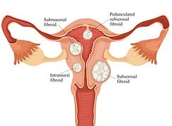 Types of fibroids diagram