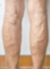 Patient-with-multiple-varicose-veins-on-both-legs