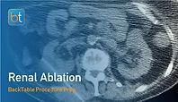 Renal Ablation Procedure Prep
