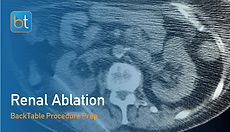 Step-by-step guidance on how to perform Renal Ablation. Review tools, techniques, pearls, and pitfalls on the BackTable Web App.