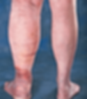 varicose-vein-disease-leg-swelling