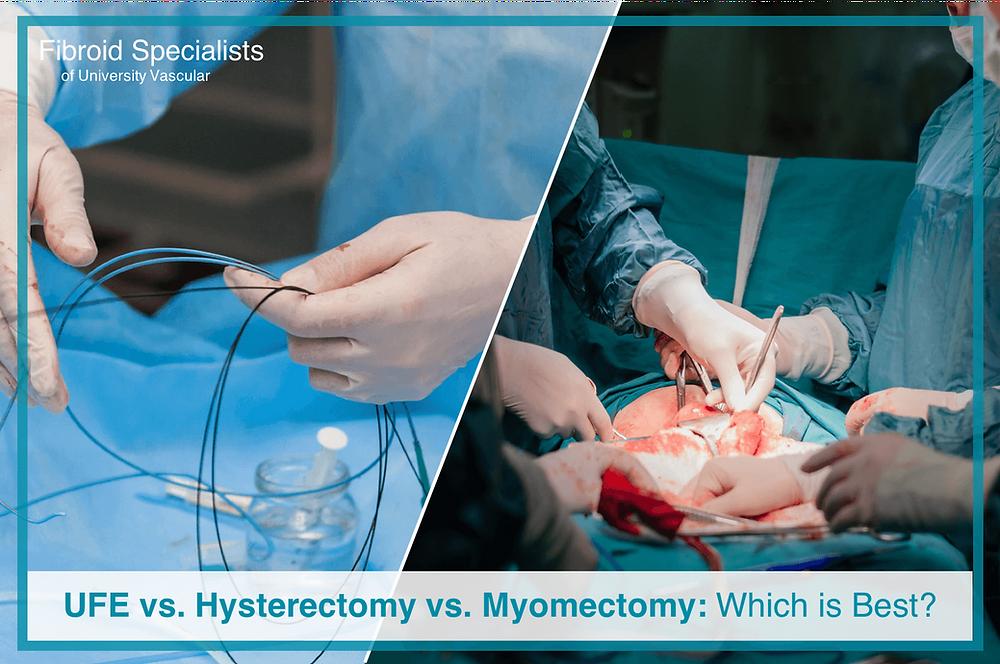 Hysterectomy vs. Myomectomy vs. UFE: Which is Best?
