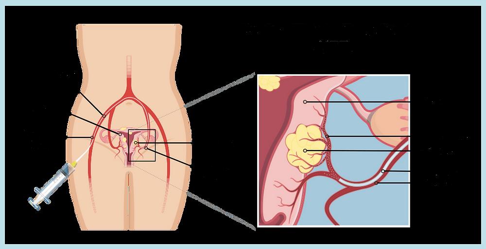 shrink fibroids ufe