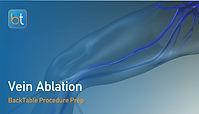 Vein Ablation Procedure Prep