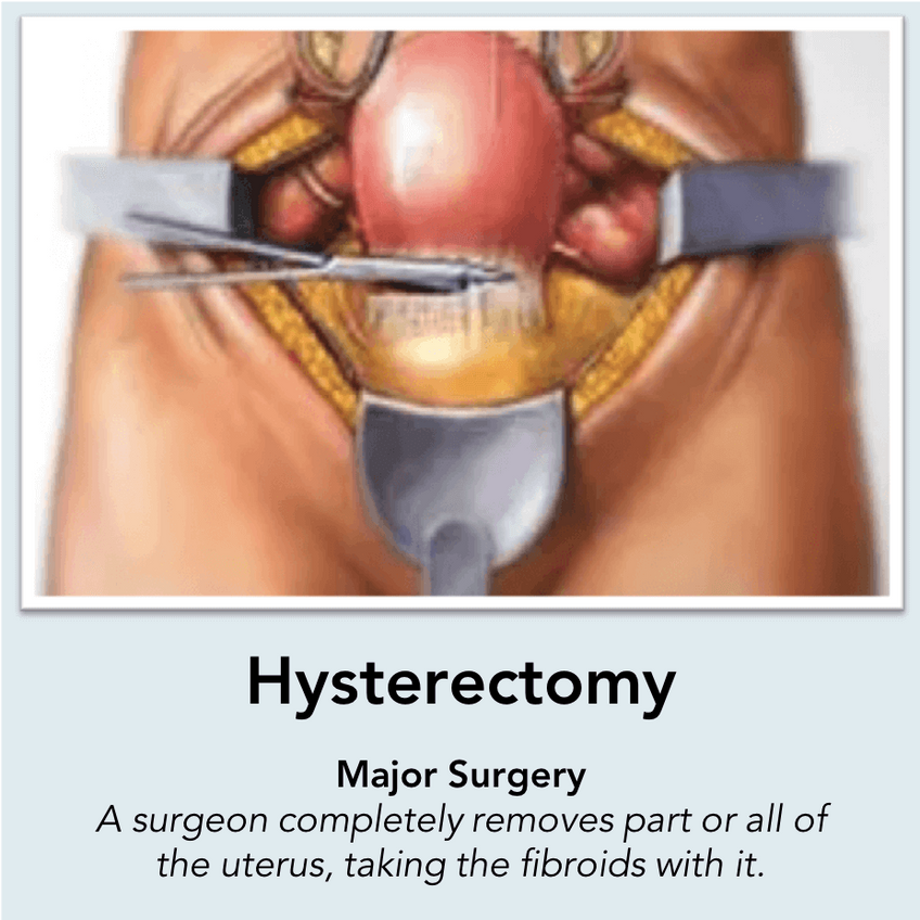 Hysterectomy Surgery: A surgeon completely removes part or all of the uterus